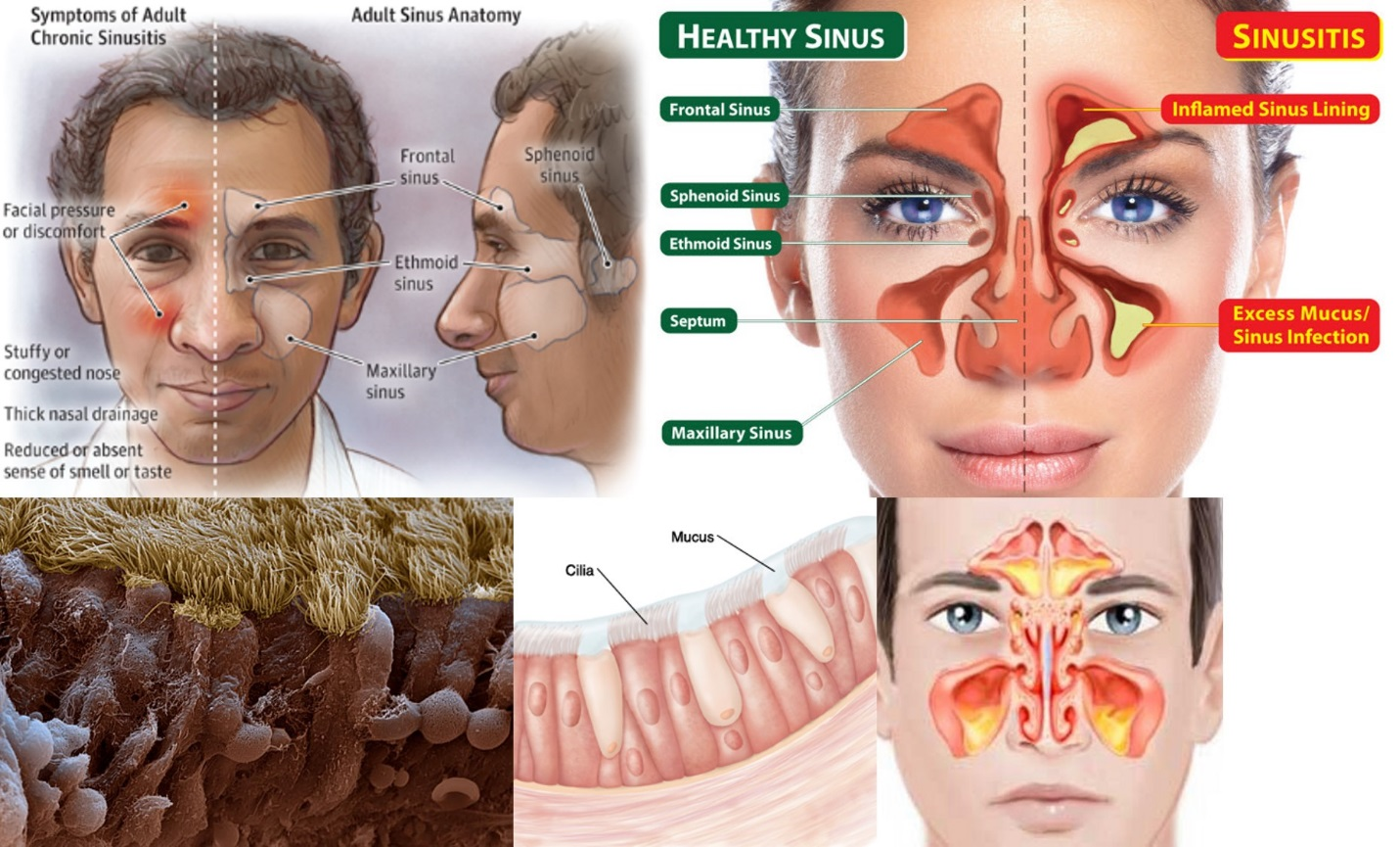 Sinus infection symptoms - irosh.info