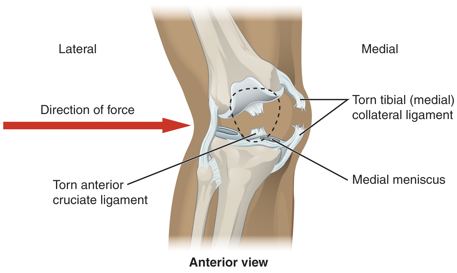 Derived copy of anatomy of selected synovial joints this image shows an injured knee joint a red arrow points from left to right ccuart Choice Image